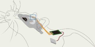 sistema neuroelettronico