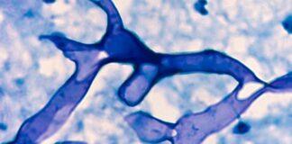 fungo-nero-sintomi-colpiti-polmoni