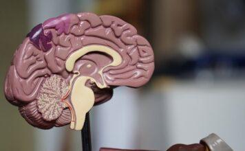 covid-19-gravità-danni-cervello